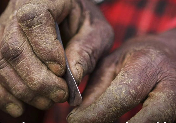 FGM: The effects go beyond what eyes see